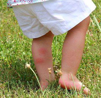 Attention aux aoûtats dans l'herbe