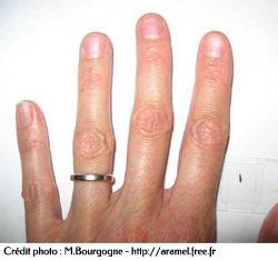 Taille du scléroderme par rapport à une main